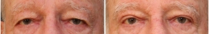 blepharoplasty-before-after-1-1