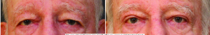 blepharoplasty-before-after-1-2