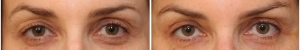 blepharoplasty-before-after-EM-1-1