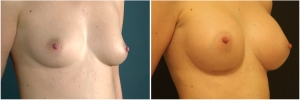 breast-implants-before-after-3-2