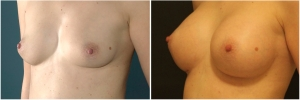 breast-implants-before-after-3-3