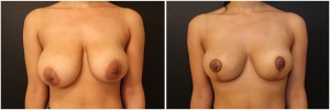 breast-lift-BA-before-after-1-1