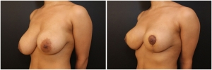 breast-lift-BA-before-after-1-2