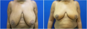 breast-lift-before-after-1-1
