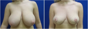 breast-lift-before-after-2-1