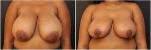 breast-lift-before-after-4-1