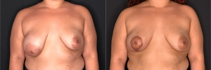 breast-lift-mg-before-after-15-1