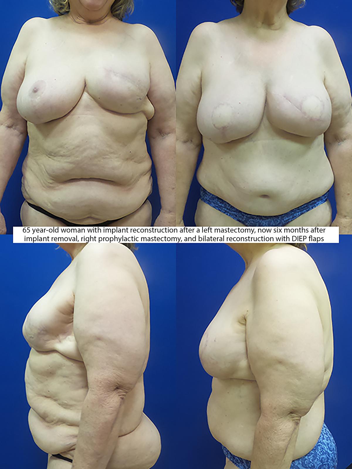 Breast reconstruction - Integrative Cancer Care - CTCA