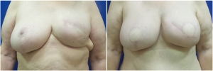 breast-reconstruction-flap-2-1