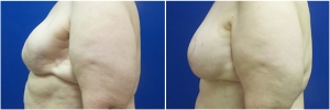breast-reconstruction-flap-2-2