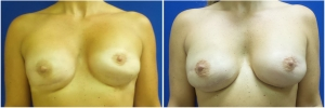 breast-reconstruction-revision-before-after-1