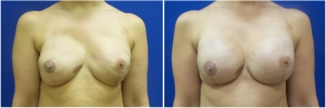 breast-reconstruction-revision-before-after-2