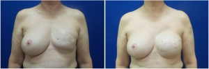 breast-reconstruction-revision-before-after-3-1