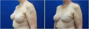 breast-reconstruction-revision-before-after-3-2