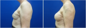 breast-reconstruction-revision-before-after-3-3