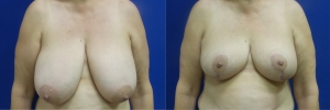 breast-reduction-GG-before-after-1-1