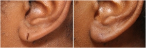 earlobe-repair-before-after-2