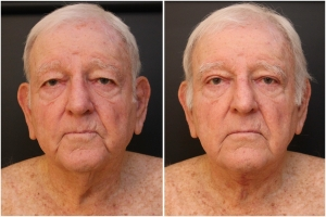 facial-rejuvenation-before-after-1-1