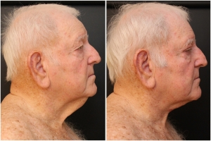 facial-rejuvenation-before-after-1-2