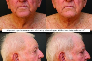 facial-rejuvenation-before-after-1-3