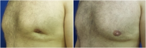 BL-gynecomastia-before-after-JL-1-1