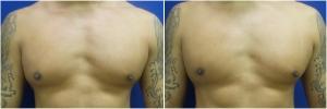 BL-gynecomastia-before-after-LB-1-1