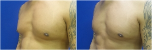 BL-gynecomastia-before-after-LB-1-2