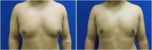 BL-gynecomastia-before-after-MP-1-1
