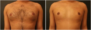gynecomastia-before-after-1-1