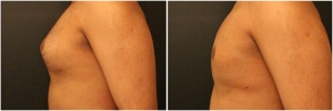 gynecomastia-before-after-1-2