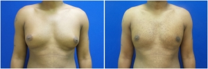 gynecomastia-before-after-2-1