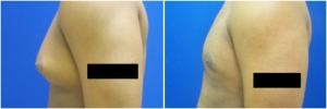 gynecomastia-before-after-2-2