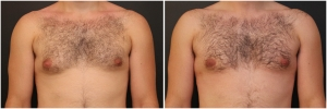 gynecomastia-before-after-3-1