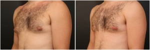 gynecomastia-before-after-3-2
