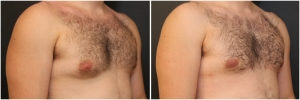 gynecomastia-before-after-3-3