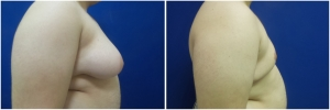 gynecomastia-surgery-before-after-KT-11-2