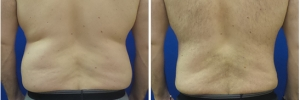 liposuction-before-after-2