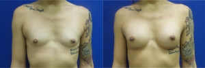 male-to-female-breast-augmentation-RB-before-after-1-1