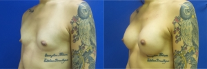 male-to-female-breast-augmentation-RB-before-after-1-2