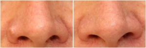 mole-removal-before-after-2-1