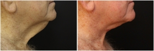 necklift-before-after-2-1