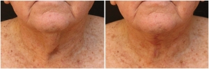 necklift-before-after-2-2