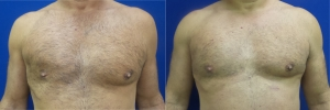 pec-implants-DG-before-after-1-1