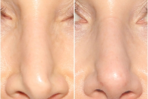 rhinoplasty-MR-before-after-1-1