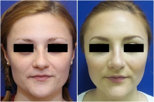 rhinoplasty-before-after-1-1