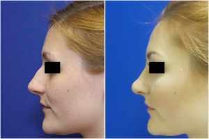 rhinoplasty-before-after-1-2