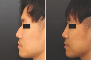 rhinoplasty-before-after-KL-1-1