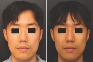 rhinoplasty-before-after-KL-1-2
