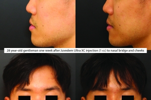 rhinoplasty-before-after-KL-1-3