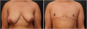 top-surgery-before-after-PD-1-1